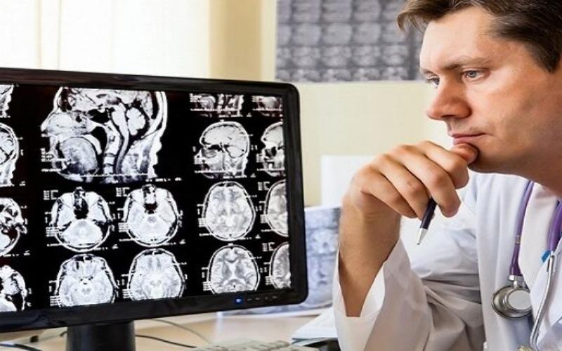 ¿Qué es la neurosífilis y qué síntomas genera?